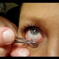 SS Meibomian Gland c Collins expressor Forceps Remove Meibum From Lids Dry Eyes