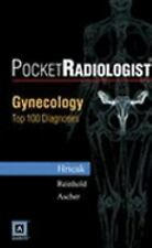 PocketRadiologist - Gynecologic: Top 100 Diagnoses (Paperback) (English)