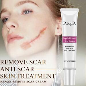 RtopR Acne Scar Stretch Marks Remover Cream Skin Repair Face Cream Beauty