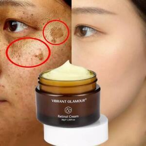 whitening cream Retinol removes melasma acne spots pigment dark spots pigment