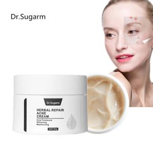 NEW Dr.Sugram Herb Acne Treatment Blackhead Removal Anti Acne Cream Oil Control