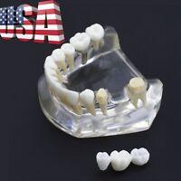USA Dental Implant Typodont Teeth Model Lower Jaw with Bridge Crown #2010