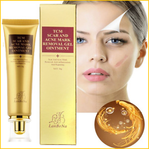 Lanbena TCM Pimple Scar & Acne Mark Spots Removal GEL Ointment Blemish Cream