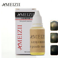 AMEIZII Hair Growth Essence New 20ml Hair Loss Liquid Dense Hair Fast Sunburst