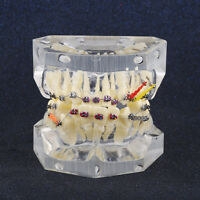 New Dental Orthodontic Treatment Malocclusion Model With Brackets Chain Wire AF