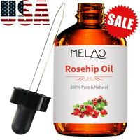 Rosehip Seed Oil - 100% Pure Cold Pressed 4oz Free US Shipping