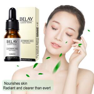 ZeroPore Natural Instant Perfection Serum Minimize Pores Acne Remover Face Care