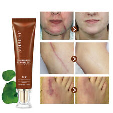 Cream Freckle Cream Extract Acne Removal Scars Marks Treatment Facial 30g