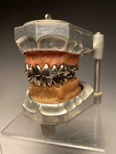 Columbia Dentoform Metal Teeth In Dental Articulator Oddities Macabre Dentistry