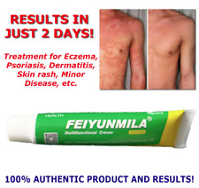 Psoriasis Eczema Rosacea Dermatitis Skin Rash Treatment Acne Cream anti bacteria