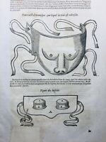 Opticien 1614 Orthoptiste Ophtalmologie Gravure Ambroise Paré Nez artificiel