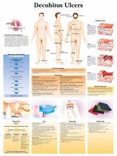 Cartel médico A3 – úlceras decúbito (libro de texto de anatomía Patología Médico Enfermera)