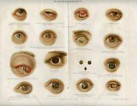 Stampa Antica 1898 = MALATTIE DELL'OCCHIO = Medicina = CROMOLITOGRAFIA Old Print