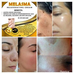 Melasma Rejuvenating Cream Remove Dark Spot Freckles Hyperpigmentation New Label
