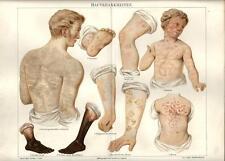 Stampa antica ANATOMIA MEDICINA MALATTIE della PELLE 1890 Old antique print