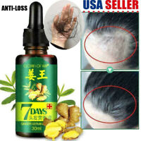7 Days Hair Growth Products For Men Women Natural Oil Serum Grow Fast Treatment