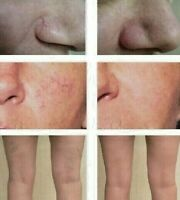 Vitamin K Cream - Spider Varicose Veins Scars Rosacea Capillaries Dark Circles
