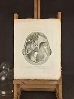 RARE Milieu XIXeme Ancienne gravure médicale chirurgicale «Cerveau» F. ARNOLDI