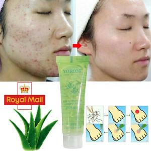 100% Pure Natural Aloe Vera Gel Soothing Anti Pimple Moisturizing Skin Cream UK