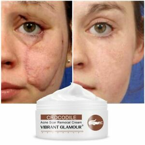 Crocodile Repair Face Cream Acne Scar Removal Whitening Spots Stretch Treatment