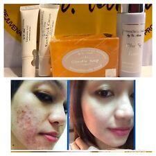 Dr. Alvin PSCF Anti-Acne Pimples Glycolic Set New Set For Acne Problem
