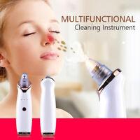 Vacuum Pore Comedone Acne Extractor Facial Skin Pore Cleaner Blackhead Remover