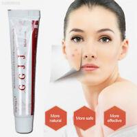 EA22 15g Antibacterial Ointment Herbaceous Cream for YANDAIFU Skin Fungus Care