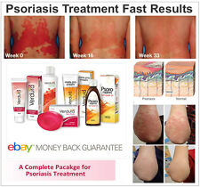 Psoriasis Complete Treatment Package, Psoriasis Dermatitis, Red Patches of Skin