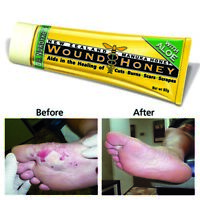 Dr Nordyke's Manuka Wound Honey - 100% Organic Honey & Aloe for Cuts and Burns