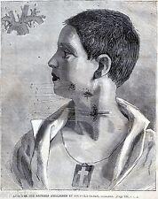 Chirurgia Vascolare: LEGATURA ASCELLARE E SOTTOCLAVICOLARE:Tecnica.Medicina.1881