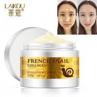 crème escargot pour le visage acné cicatrice soins de la peau vergetures