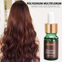 LIDORIA Hair Growth Essential Oil Treatment Anti Loss Hair Treatment Essence