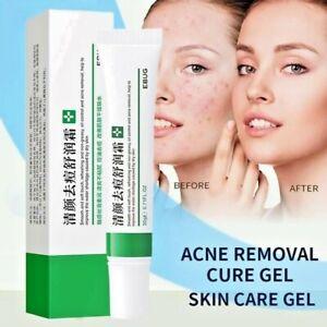 Acne Removal Cream Freckle Cream Shrink Pores Whitening Moisturizing Oil Control