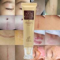 LanBeNaScar Removal Cream Skin Repair Face Cream  Spots Treatment 30g