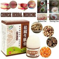 Herbal Removal Rot Myogenic Cream Bedsores Paste Treat Festering Wound Healing