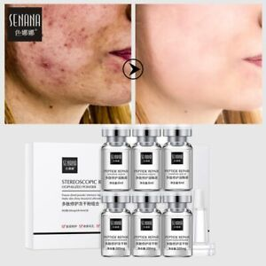 SENANA Peptide Lyophilized Powder Serum Acne Wrinkle Pimples Treatment Epidermal