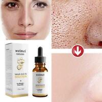 30ml Salicylic Acid Stock Solution Oil Moisturizing Brightening Pore Shrink J2L2