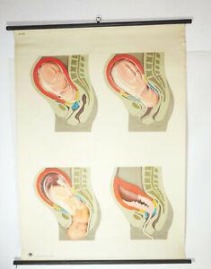 Vintage Carte à Rouler Geburtsvorgang Sage-Femme Frauenarzt DDR Lehrkarte