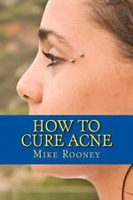 How to Cure Acne : What Is Acne and the Best Treatments for Acne by Mike...