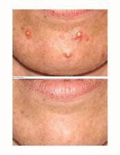 Acne Care Capsules (BUY 2, GET 1 FREE!)