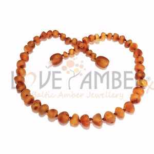 100% Child Cocoa Genuine Raw Cognac Brown Baltic Amber Necklace Love Amber x UK
