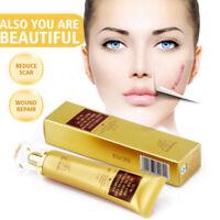 Ginseng-Extrakt gegen Narben Akne Mark Entfernung Hautpflege Gesicht Creme