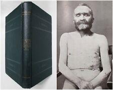 Antique 1903 INTRACRANIAL TUMORS AMONG THE INSANE Asylum Insanity Medical Book