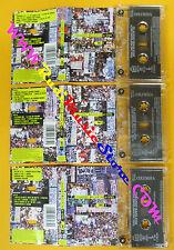 3 MC CLAUDIO BAGLIONI A-live 1998 holland COLUMBIA COL 491807 4 no cd lp vhs dvd
