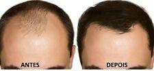 Dieta natural de tratamento para a queda de cabelos