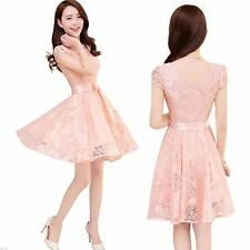 Knee Length Lace Casual Dresses (2-16 Years) for Girls