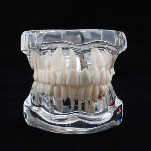 Adult Standard Typodont Demonstration Teeth Model Dental Disease Teaching Study