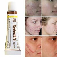Natural Ointment Remove Scar Cream Acne Treatment Snake Oil Hand Skin Face Care