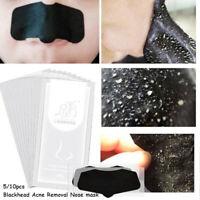 masque point noir de l'acné suppression nez de pâte nettoyage des pores