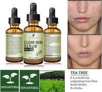 100% Pure Tea Tree Serum Acne Treatment Anti Acne Scar Pimple Removal Skin Care